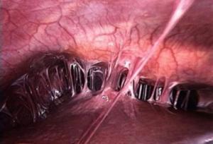 спайки после операции симптомы