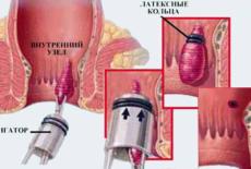 Лигирование геморроидального узла