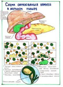 схема образования камней