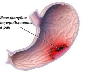 Перерождение язвы желудка в рак