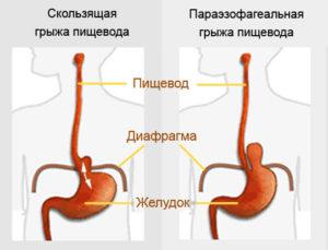 Скользящая грыжа диафрагмы