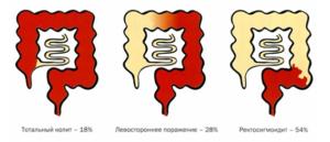 воспаление толстой кишки