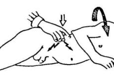 Определение аппендицита при помощи синдрома Ситковского
