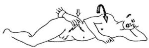 Определение аппендицита