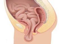 Симптомы ректоцеле