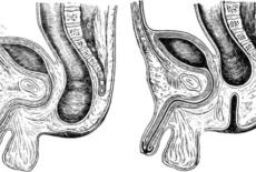 Атрезия прямой кишки