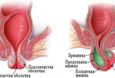 Симптомы опущения прямой кишки