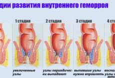 Стадии развития внутреннего геморроя