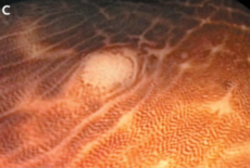 Меланоз толстой кишки