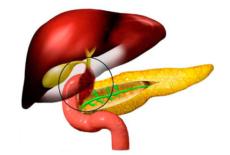 гипокинезия желчного пузыря