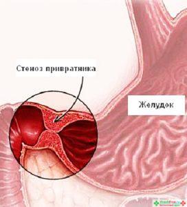 Пилороспазмоз