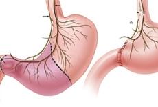 ваготомия как операция