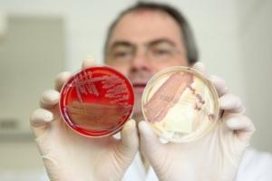 Инфекция - причина тошноты