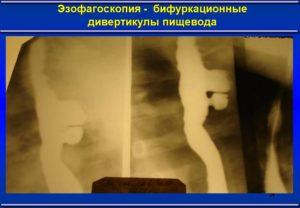 Эзофагоскопия пищевода
