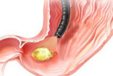 Пенетрация язвы желудка