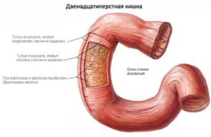 Воспаление двенадцатиперстной кишки