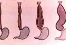Кардиоспазм