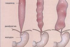 Симптоматика спазма пищевода