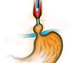 Лечение сужения пищевода