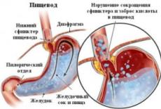 Причины формирования пептического эзофагита