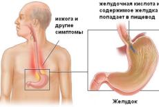 Возникновение рефлюкс эзофагита