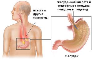 эрозивный эзофагит