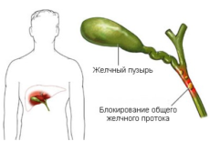 Причины развития холестаза