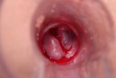 Кровоточащий геморрой