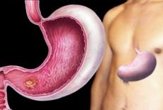 Опухоль желудка