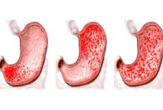 Особенности гастродуоденита