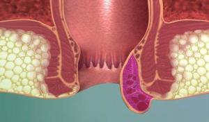 Тромбоз геморроидальных узлов