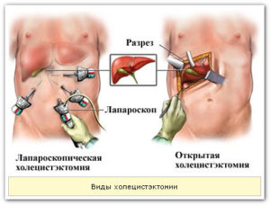 виды холецистэктомии