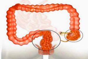 спазмы кишечника