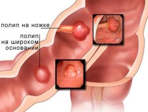 доброкачественные новообразования в кишечнике