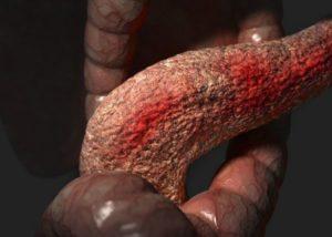 покраснение тканей органа