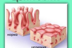 непереносимость белка