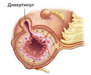 диверитикул