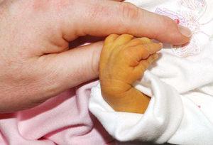 пожелтевшая рука младенца