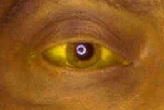 желтая склера глаза