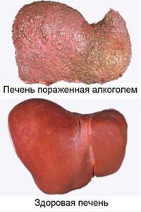 болезнь печени