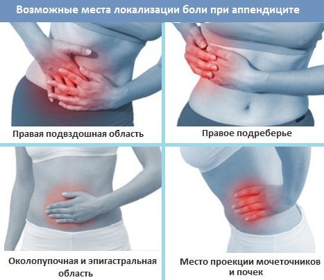 места локализации боли