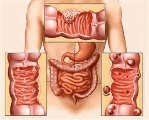 опухоль толстой кишки
