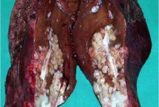 злокачественные образования в печени