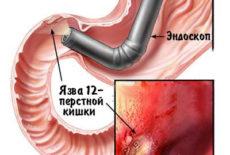 обследование эндоскопом