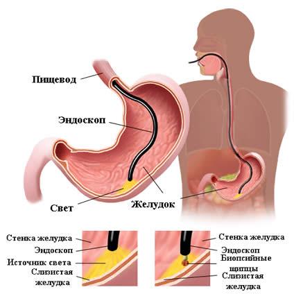 отщипление слизистой желудка