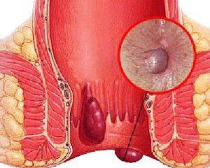 воспаление узлов в прямой кишке