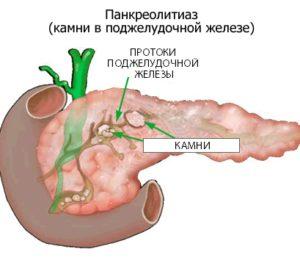 панкреолитиаз