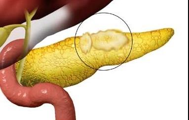 жировой нарост на железе