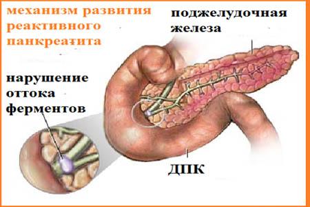 воспаление поджелудочной